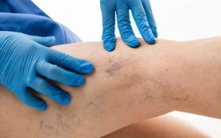 Сок крапивы – применение в медицине и косметологии