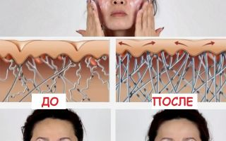 Крем с коллагеном — эффективное средство от морщин, полезное воздействие на кожу