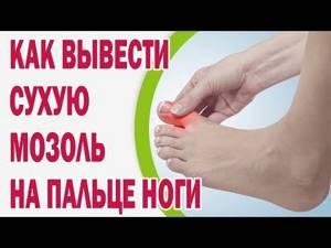 Сухие мозоли на ногах - лечение дома и профилактика