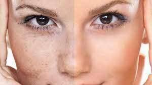 Облепиха для лица: рецепты лучших масок