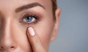 Как быстро убрать синяки под глазами с помощью народных средств