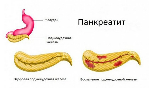 Куркума: можно ли употреблять её при гастрите, применение при болезнях ЖКТ с повышенной кислотностью