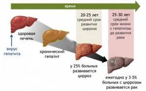 Имбирь для печени: возможности применения и противопоказания
