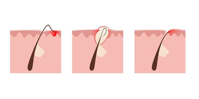 Вросший волос – подробно о деликатном