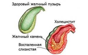 Куркума при холецистите: рецепты для устранения проблем с желчным пузырем, можно ли употреблять после его удаления