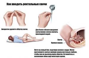 Острицы: лечение народными средствами и профилактика