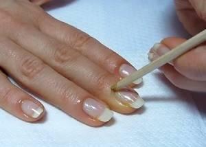 Касторовое масло: для ногтей и кутикулы, cпособы его применения и от каких проблем с его помощью можно избавиться