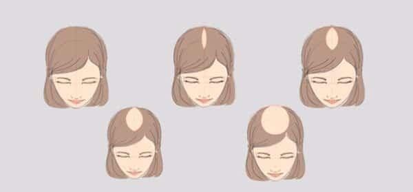 Выпадение волос у женщин - 7 основных причин