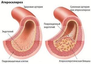 Чесночная настойка для здоровья и омоложения организма
