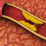 Пиколинат хрома: отзывы худеющих людей, инструкция по применению препарата от Солгар и его цена