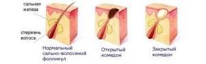 Комедоны – лечение медикаментозными и домашними средствами