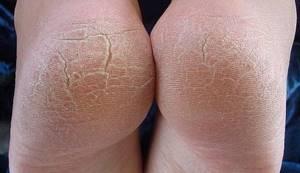 Трещины на пятках: основные причины появления