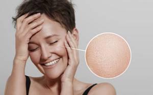 Распаривание лица от черных точек для глубокого очищения кожи