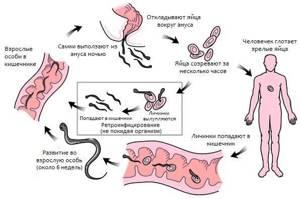 Острицы: симптомы, причины и осложнения заболевания