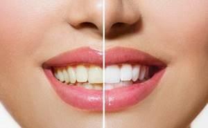 Отбеливание зубов куркумой: проверенные и действенные рецепты