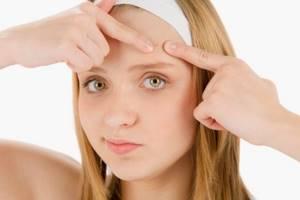 Азелаиновая кислота: какими свойствами обладает и как воздействует на кожу, цена препаратов с этим веществом