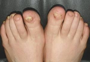 Куркума от грибка ногтей: рецепты, которые помогают на самом деле, приготовления средств в домашних условиях