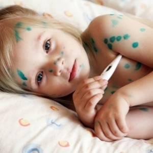 Ветряная оспа - симптомы и особенности у детей и взрослых