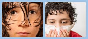 Повышенная потливость: причины появления у детей и взрослых