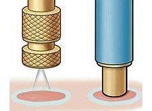 Чистотел от папиллом: можно ли прижигать и полностью избавиться от них, как правильно использовать сок и не навредить коже