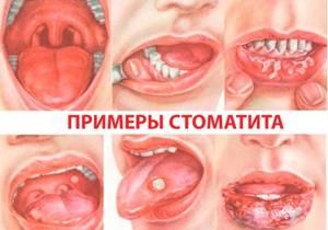 Стоматит: лечение в домашних условиях для детей и взрослых