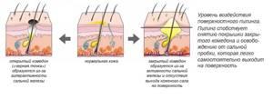 Комедоны на лице и спине – классификация и причины возникновения