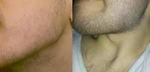 Касторовое масло для бороды: на самом ли деле помогает для роста, как использовать и правила применения