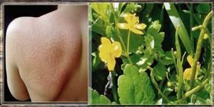Чистотел: полезные свойства и противопоказания, применение в народной медицине, лечение кожных заболеваний