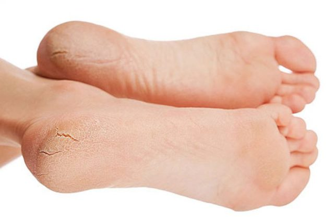 Трещины на пятках: лечение эффективными народными средствами