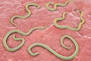 Имбирь от паразитов: правила приема и дозировка