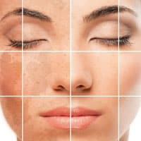 Удаление пигментных пятен на лице: современные и народные методы