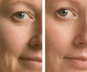 Кокосовое масло для кожи вокруг глаз – быть красивой просто