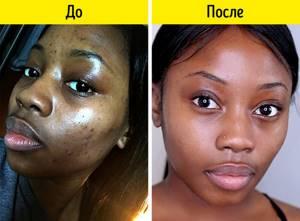 Абрикосовое масло: свойства и применение для лица и волос, как используют для загара и роста ресниц и ногтей